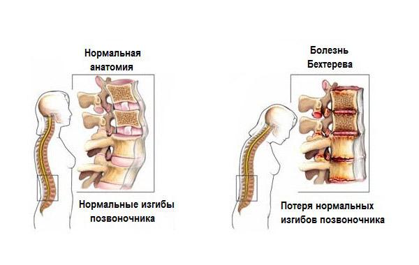 шалфей лечение суставов